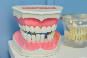 Gebiss für Zahnarztkostenübernahme durch Private Krankenversicherung für Beamte